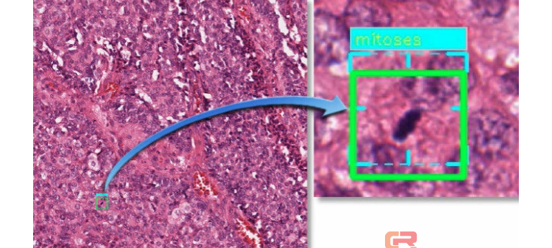 「盘点」AI 改变了什么?图像识别技术帮你提前发现癌症
