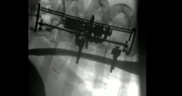 科学家创造机器人植入物 可拉伸器官以促进组织生长