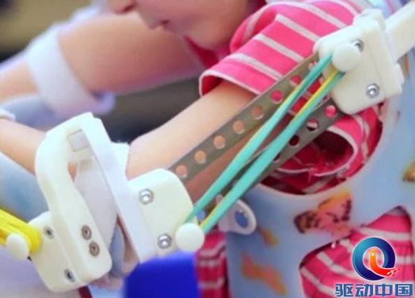 定制款机器人外骨骼面世,帮助残疾儿童重新站起来!