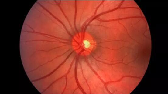 谷歌DeepMind开发AI可有效检测眼疾:对莎普爱思们说再见